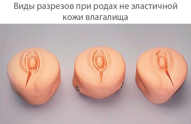 Через сколько восстанавливается влагалище после родов