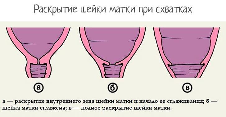 Почему шейка матки не раскрывается
