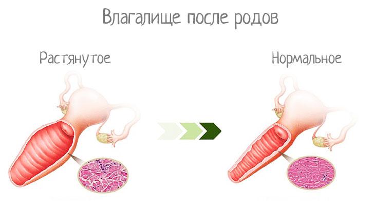 Пластика влагалища - уменьшение после родов, цены